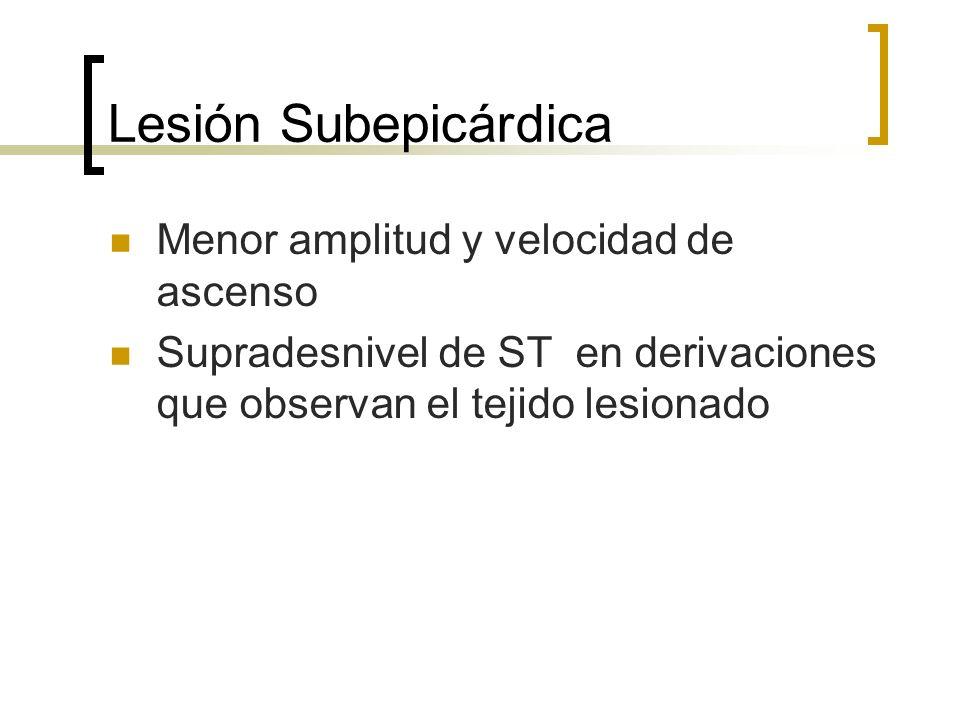 Lesión Subepicárdica Menor amplitud y velocidad de ascenso Supradesnivel de ST en derivaciones que observan el tejido lesionado
