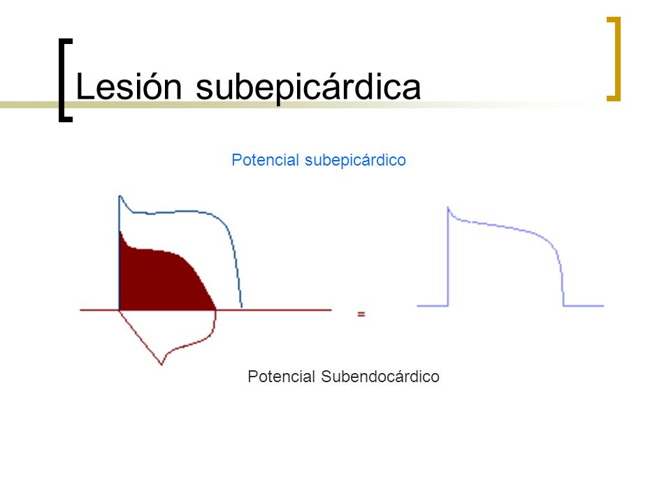 Lesión subepicárdica Potencial subepicárdico Potencial Subendocárdico