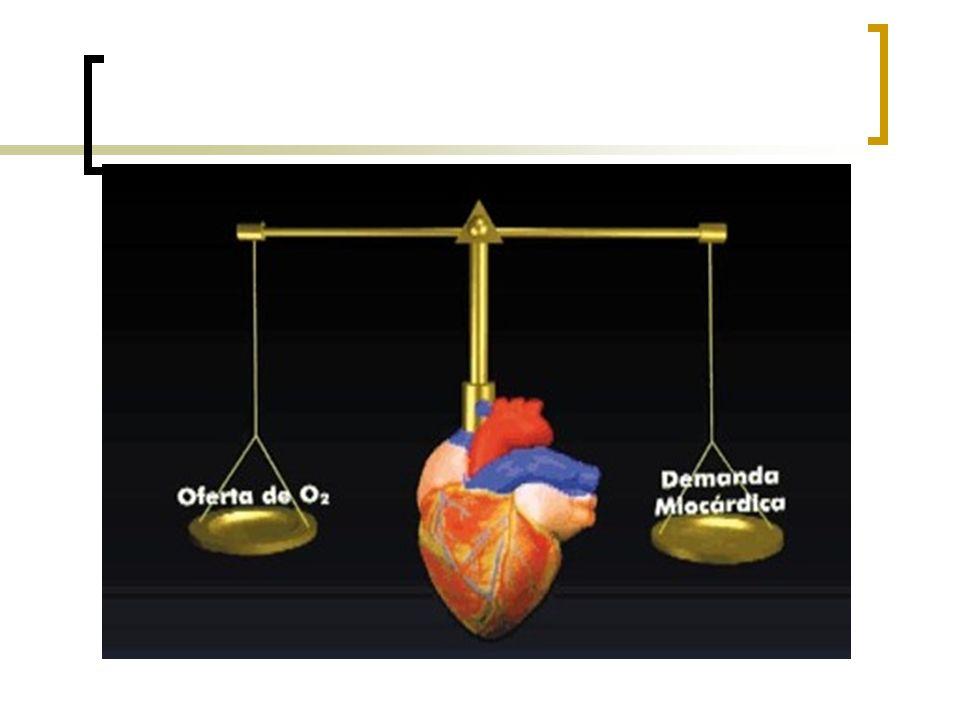 Isquemia subepicárdica Anterolateral e inferior