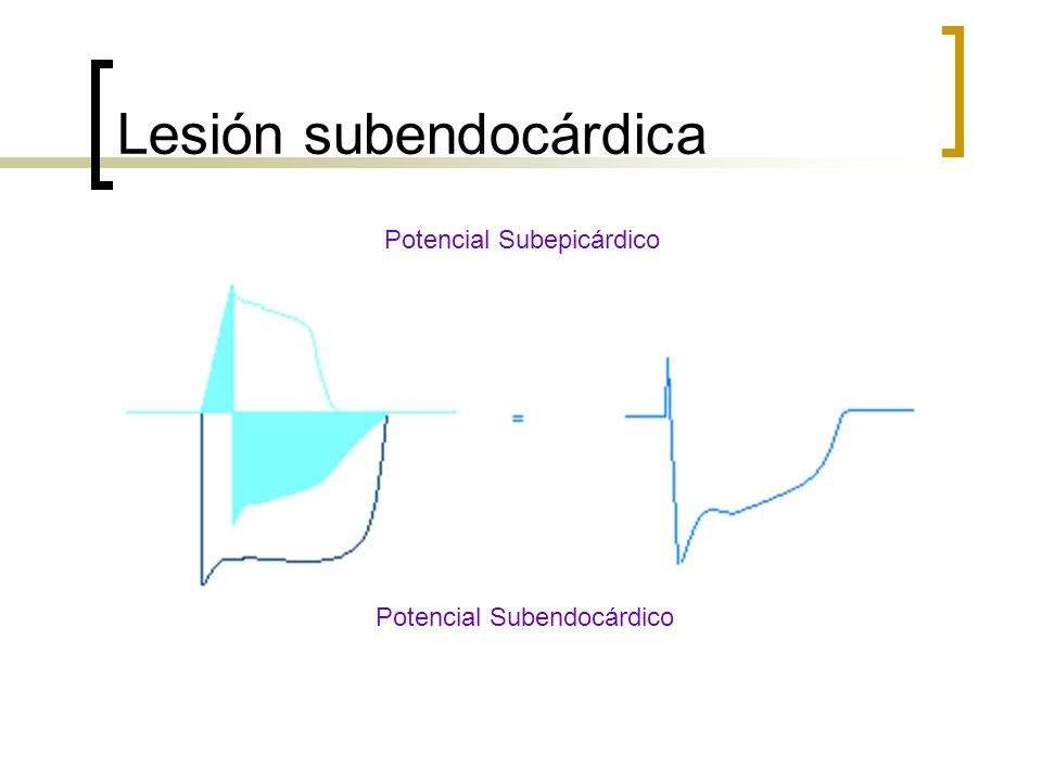 Lesión subendocárdica Potencial Subepicárdico Potencial Subendocárdico