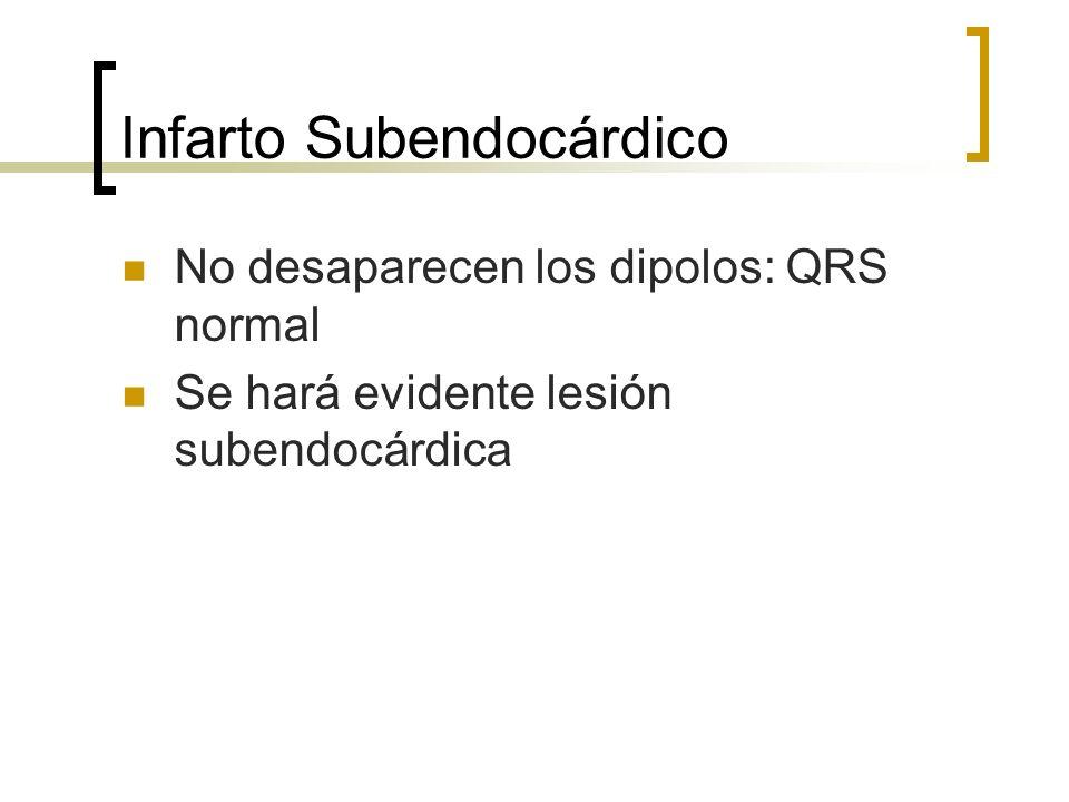 Infarto Subendocárdico No desaparecen los dipolos: QRS normal Se hará evidente lesión subendocárdica