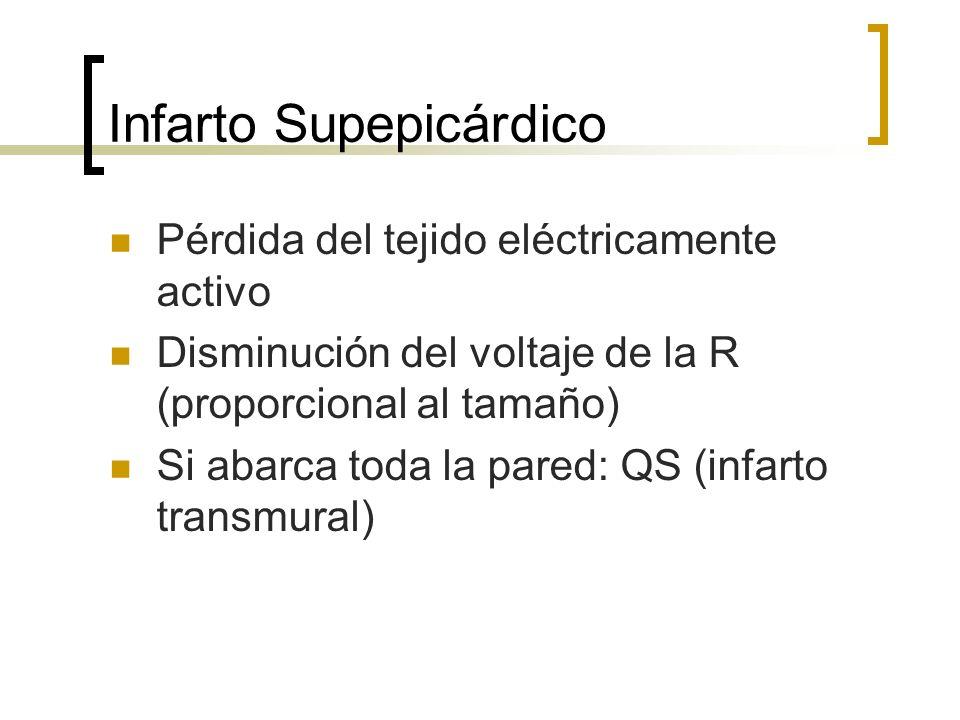 Infarto Supepicárdico Pérdida del tejido eléctricamente activo Disminución del voltaje de la R (proporcional al tamaño) Si abarca toda la pared: QS (i