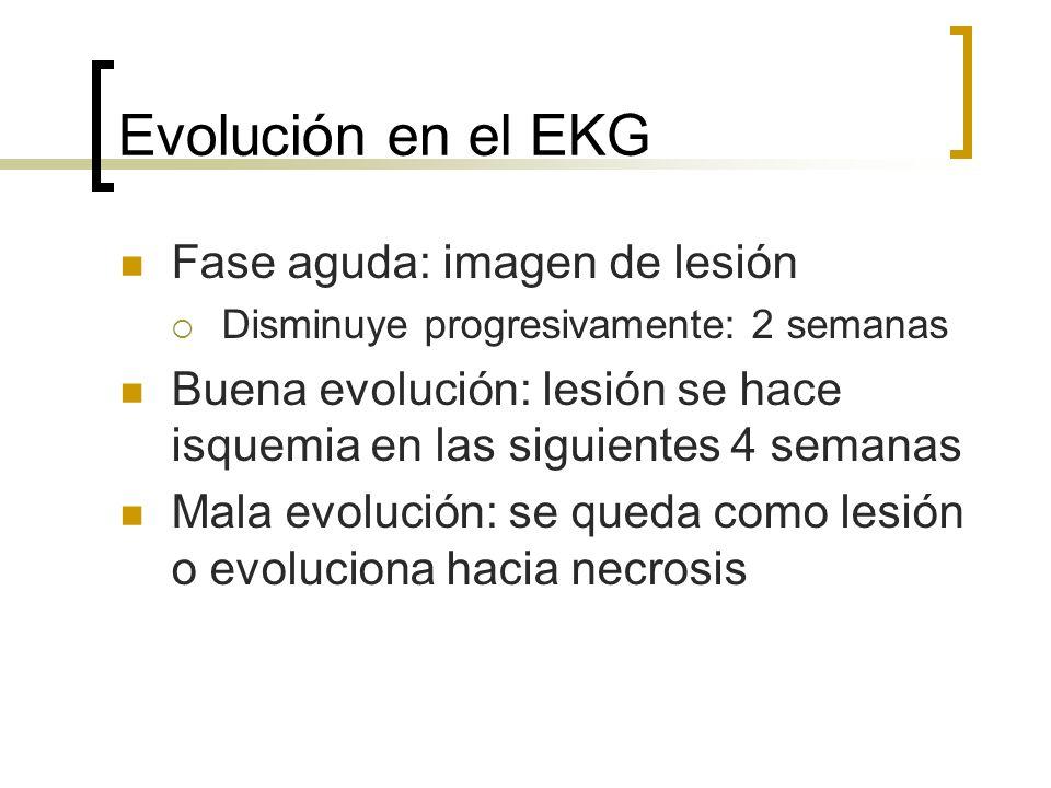 Evolución en el EKG Fase aguda: imagen de lesión Disminuye progresivamente: 2 semanas Buena evolución: lesión se hace isquemia en las siguientes 4 sem