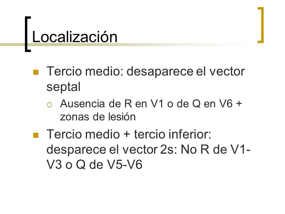 Localización Tercio medio: desaparece el vector septal Ausencia de R en V1 o de Q en V6 + zonas de lesión Tercio medio + tercio inferior: desparece el