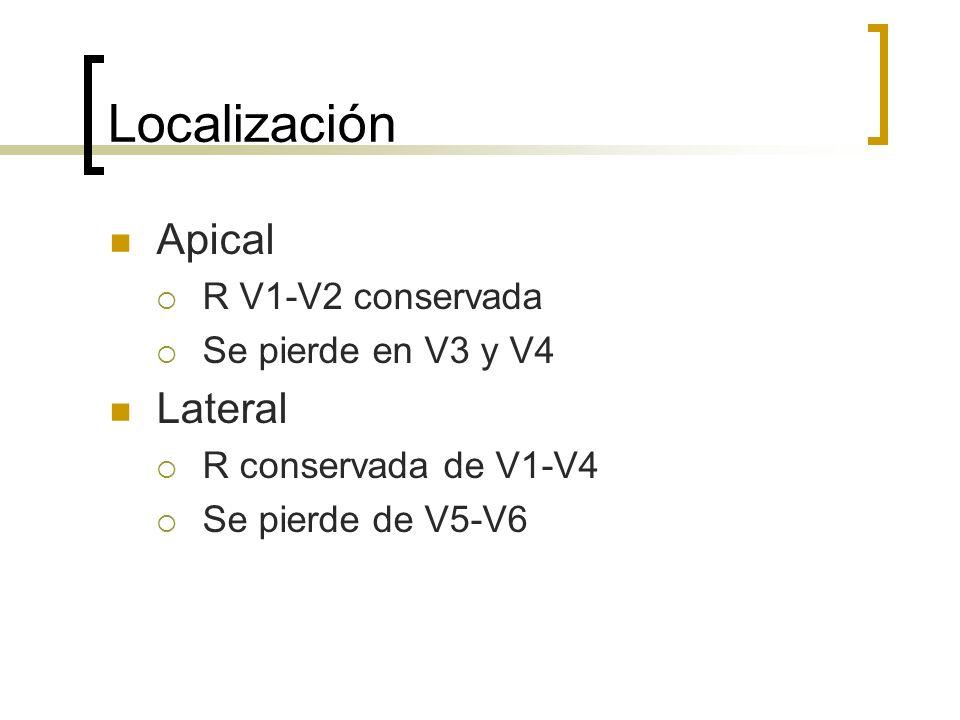 Localización Apical R V1-V2 conservada Se pierde en V3 y V4 Lateral R conservada de V1-V4 Se pierde de V5-V6