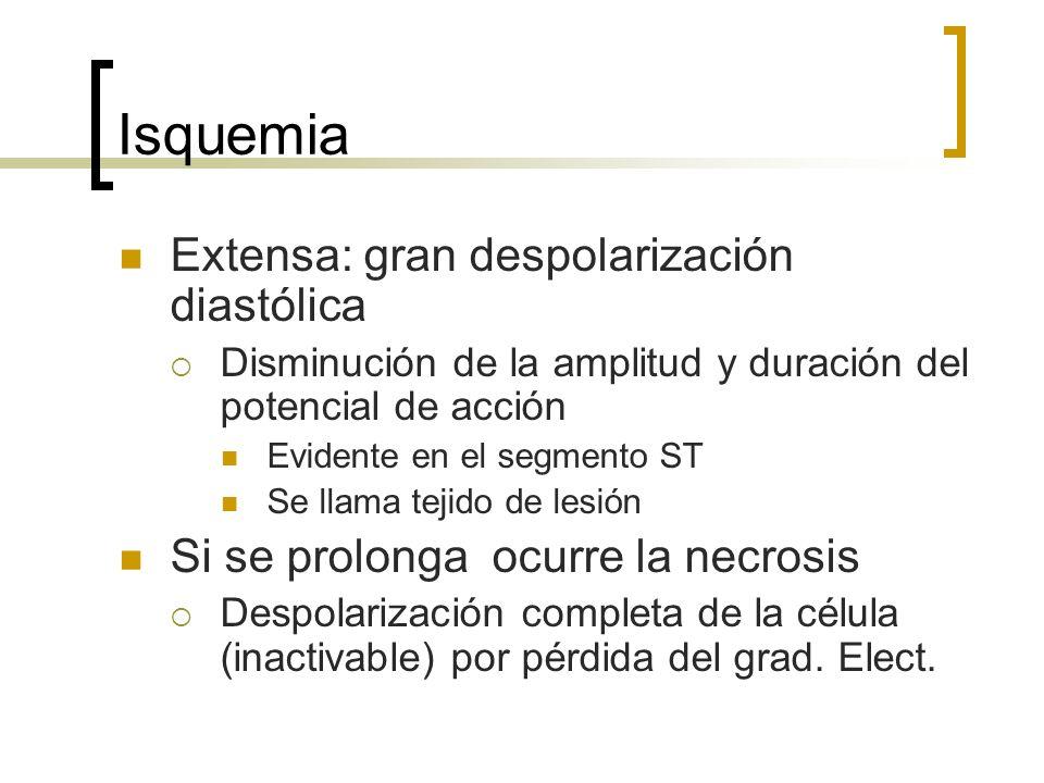 Isquemia Extensa: gran despolarización diastólica Disminución de la amplitud y duración del potencial de acción Evidente en el segmento ST Se llama te