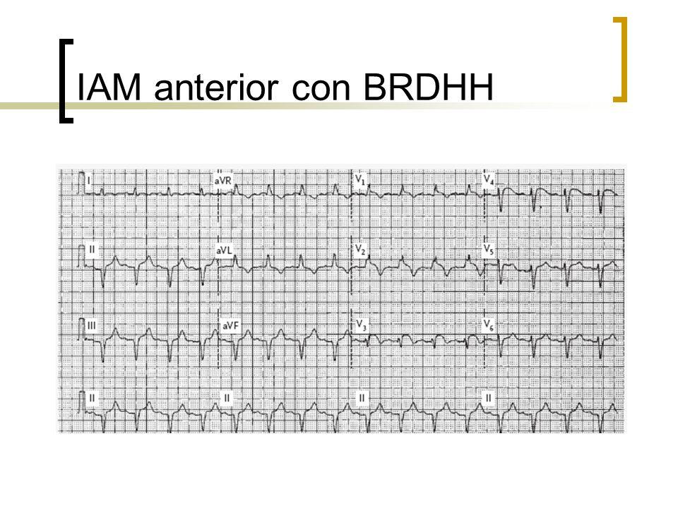 IAM anterior con BRDHH