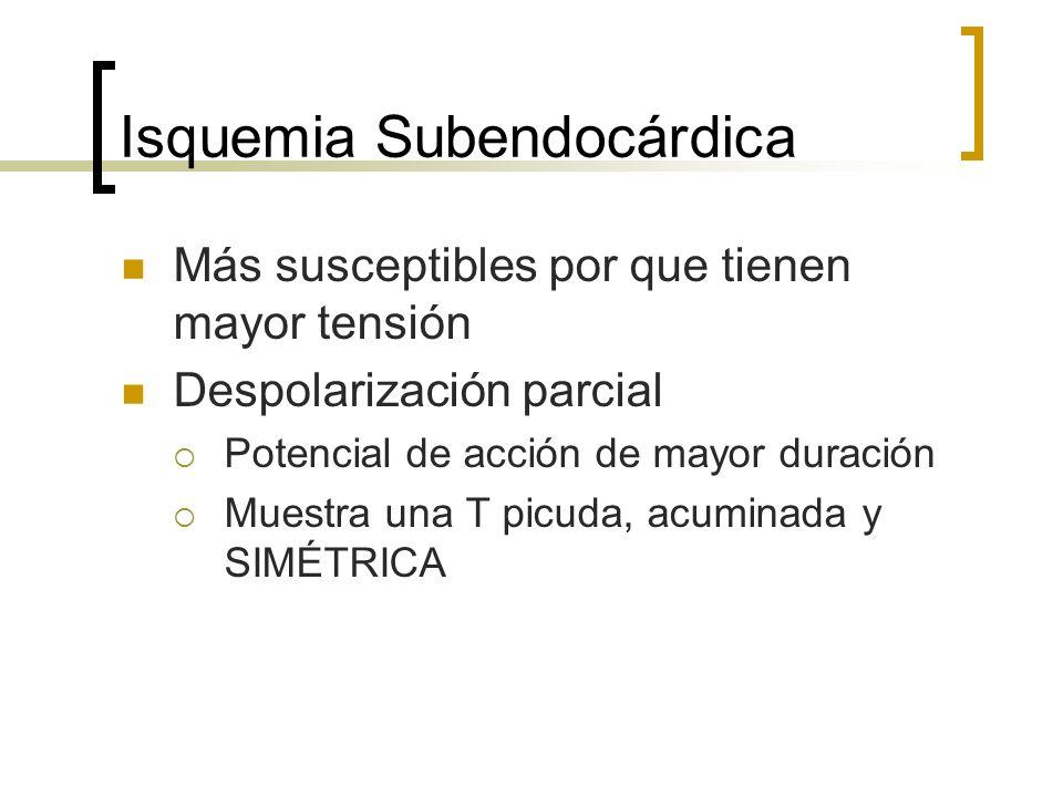 Isquemia Subendocárdica Más susceptibles por que tienen mayor tensión Despolarización parcial Potencial de acción de mayor duración Muestra una T picu