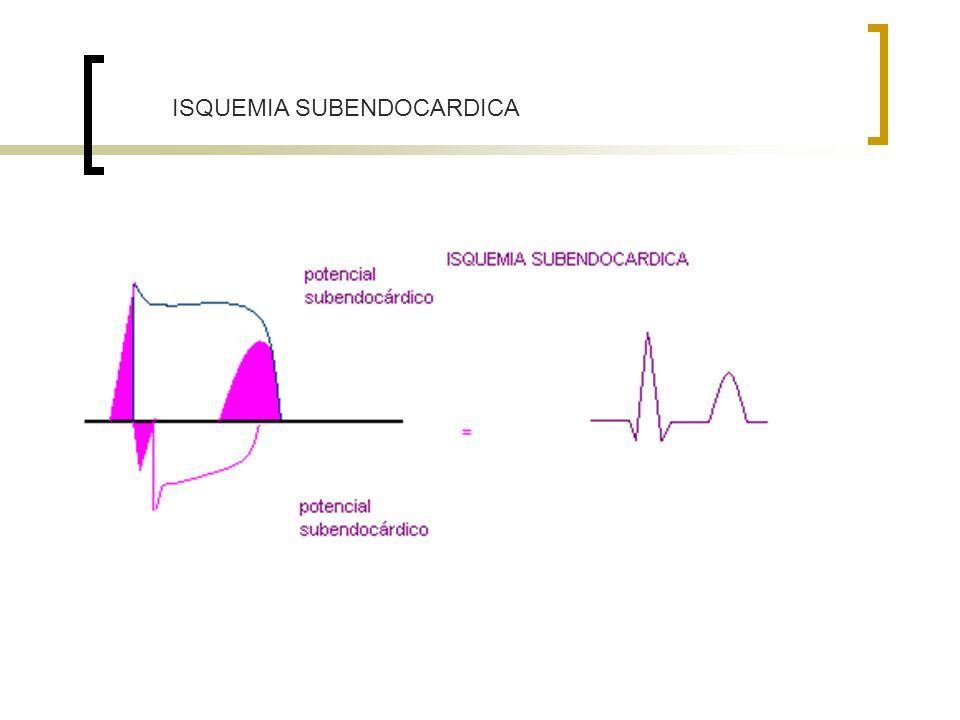 ISQUEMIA SUBENDOCARDICA