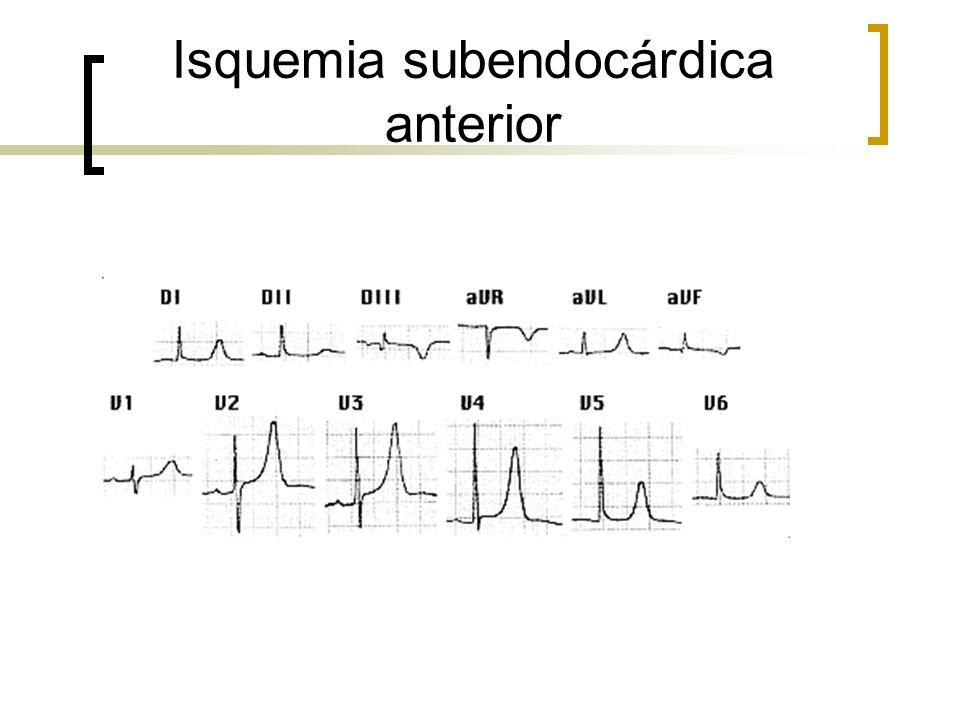 Isquemia subendocárdica anterior
