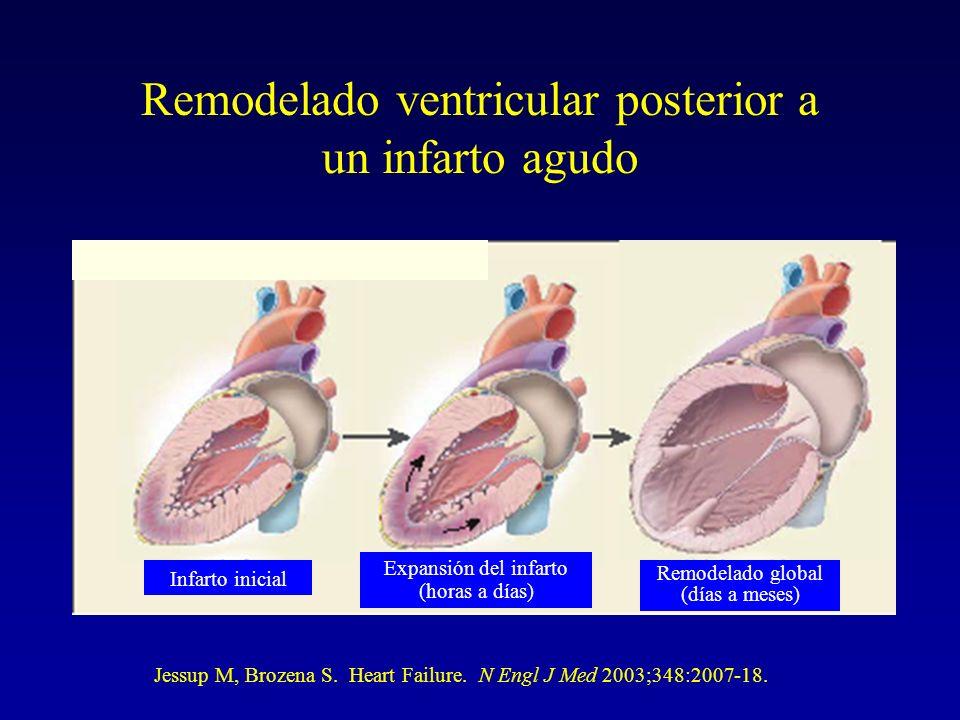 Infarto inicial Expansión del infarto (horas a días) Remodelado global (días a meses) Remodelado ventricular posterior a un infarto agudo Jessup M, Br