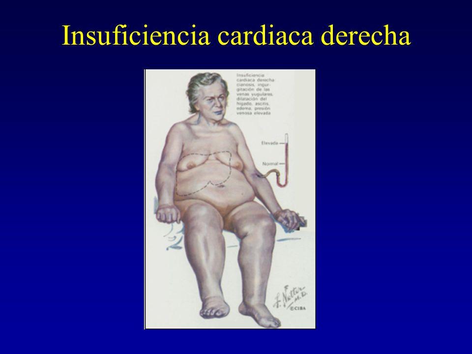 Insuficiencia cardiaca derecha