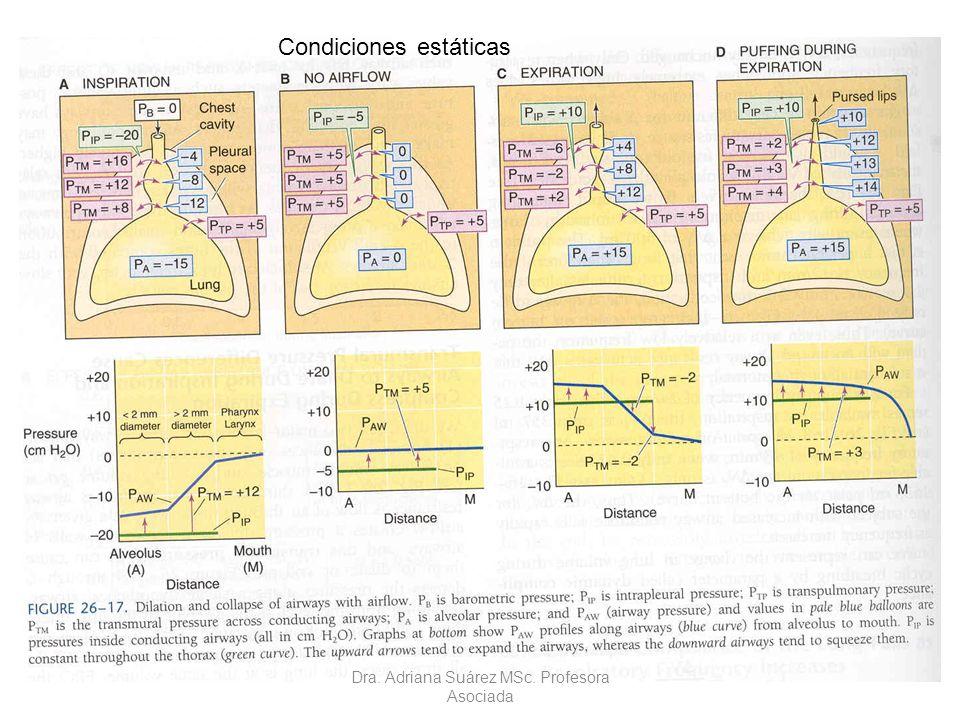 Condiciones estáticas
