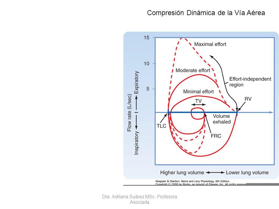 Compresión Dinámica de la Vía Aérea Dra. Adriana Suárez MSc. Profesora Asociada