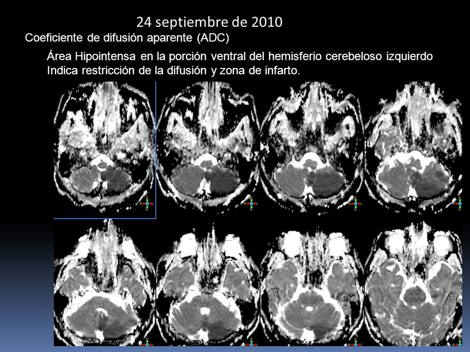 24 septiembre de 2010 Coeficiente de difusión aparente (ADC) Área Hipointensa en la porción ventral del hemisferio cerebeloso izquierdo Indica restricción de la difusión y zona de infarto.