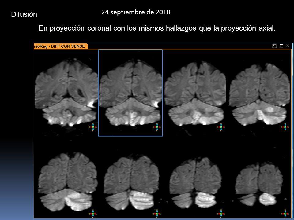 24 septiembre de 2010 Difusión En proyección coronal con los mismos hallazgos que la proyección axial.