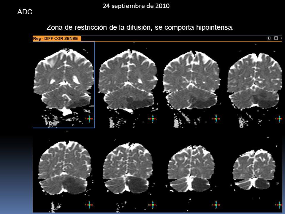 24 septiembre de 2010 ADC Zona de restricción de la difusión, se comporta hipointensa.