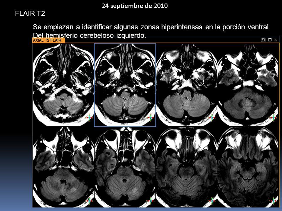 24 septiembre de 2010 FLAIR T2 Se empiezan a identificar algunas zonas hiperintensas en la porción ventral Del hemisferio cerebeloso izquierdo.