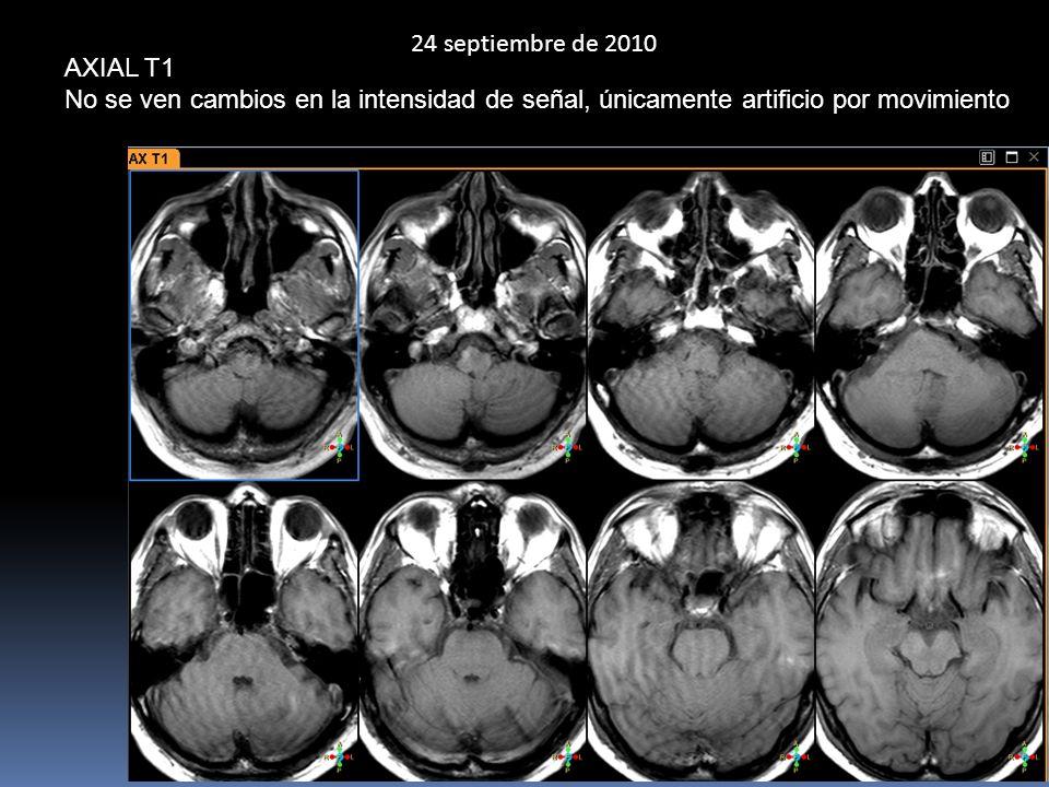 24 septiembre de 2010 AXIAL T1 No se ven cambios en la intensidad de señal, únicamente artificio por movimiento
