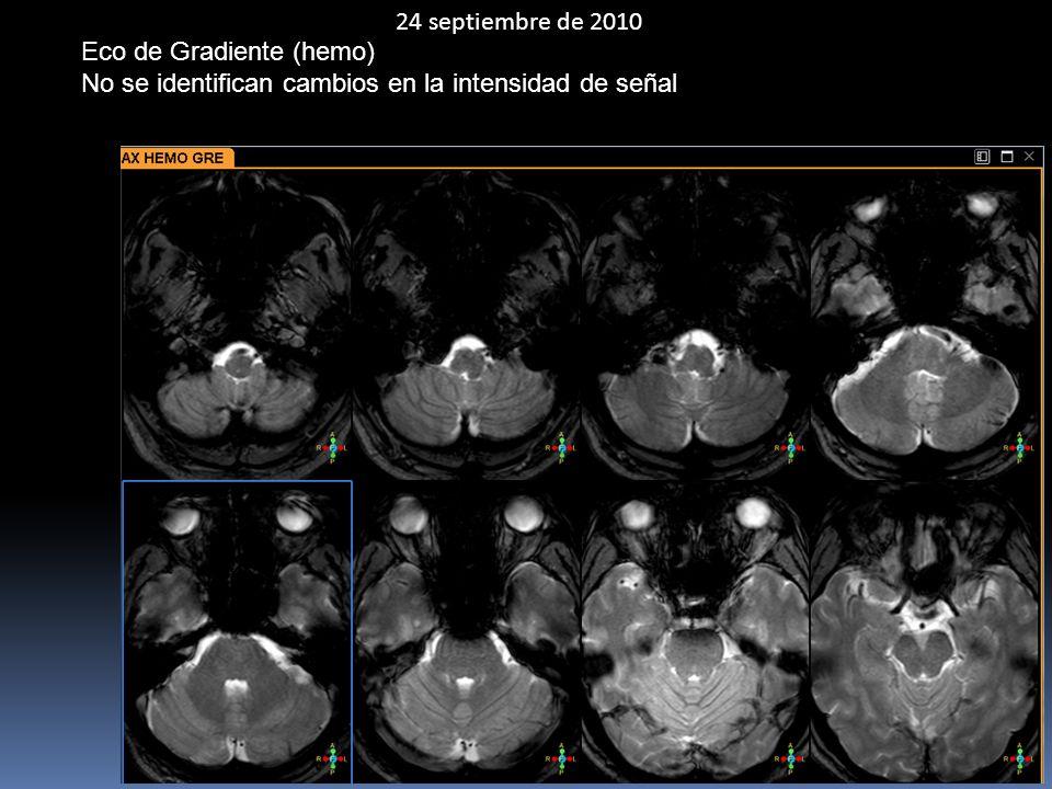 24 septiembre de 2010 Eco de Gradiente (hemo) No se identifican cambios en la intensidad de señal