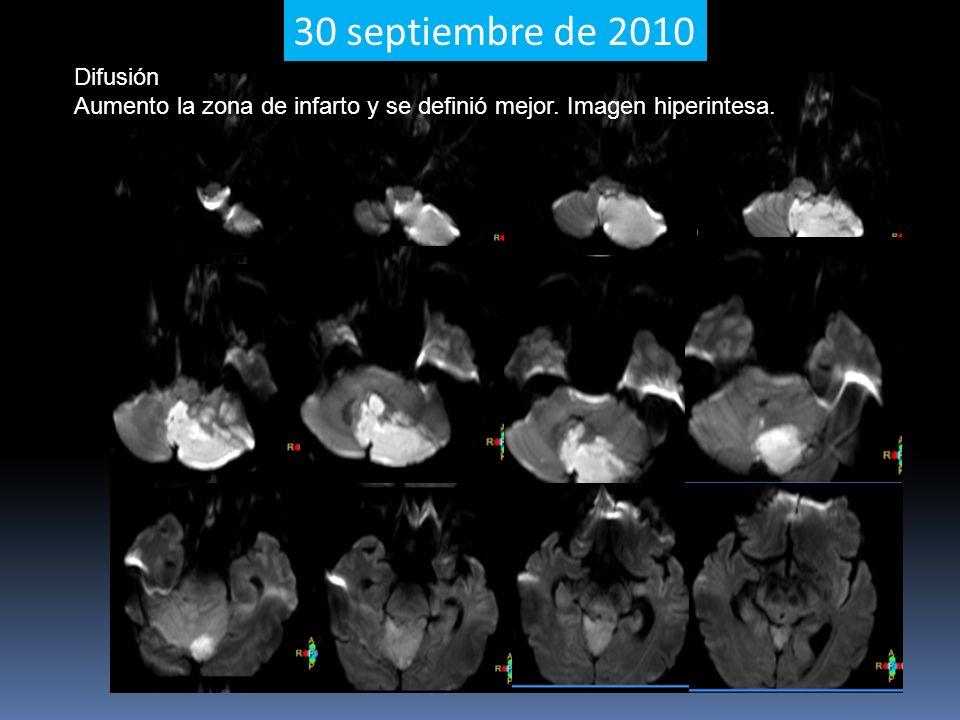 30 septiembre de 2010 Difusión Aumento la zona de infarto y se definió mejor. Imagen hiperintesa.
