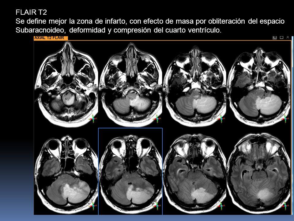 FLAIR T2 Se define mejor la zona de infarto, con efecto de masa por obliteración del espacio Subaracnoideo, deformidad y compresión del cuarto ventrículo.