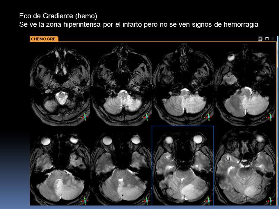 Eco de Gradiente (hemo) Se ve la zona hiperintensa por el infarto pero no se ven signos de hemorragia