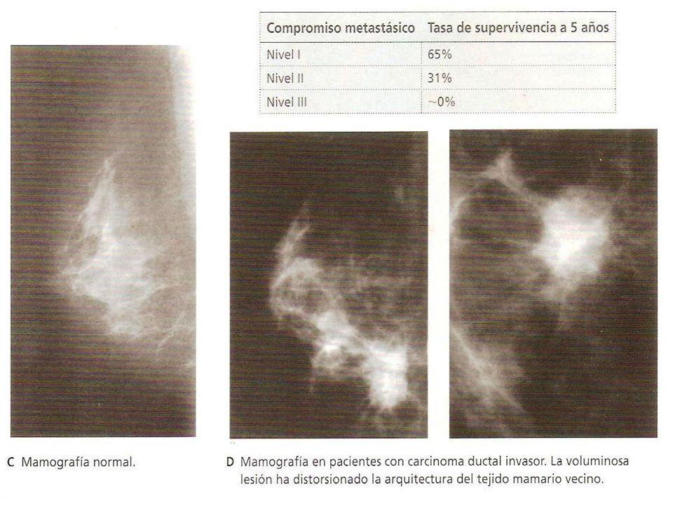 Ganglios linfáticos axilares: Son tan importantes por su número como por la extensión del territorio que drenan (la región mamaria).