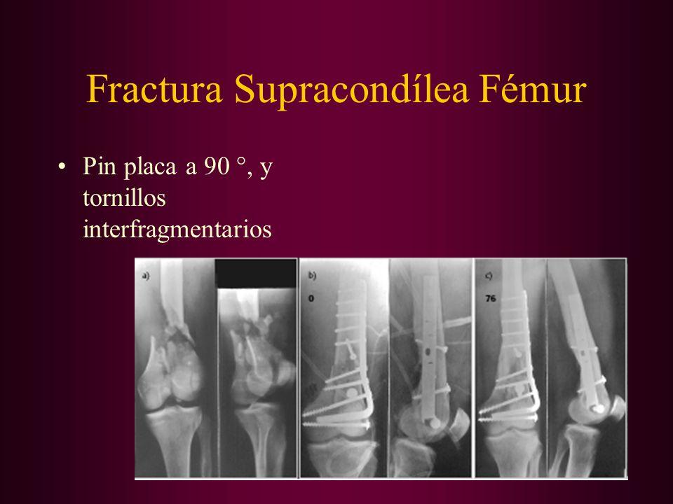 Fractura Supracondílea Fémur Pin placa a 90 °, y tornillos interfragmentarios