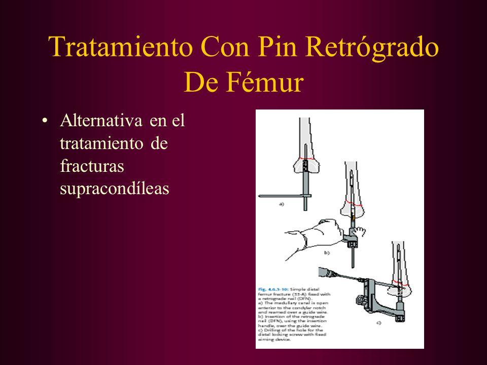 Tratamiento Con Pin Retrógrado De Fémur Alternativa en el tratamiento de fracturas supracondíleas