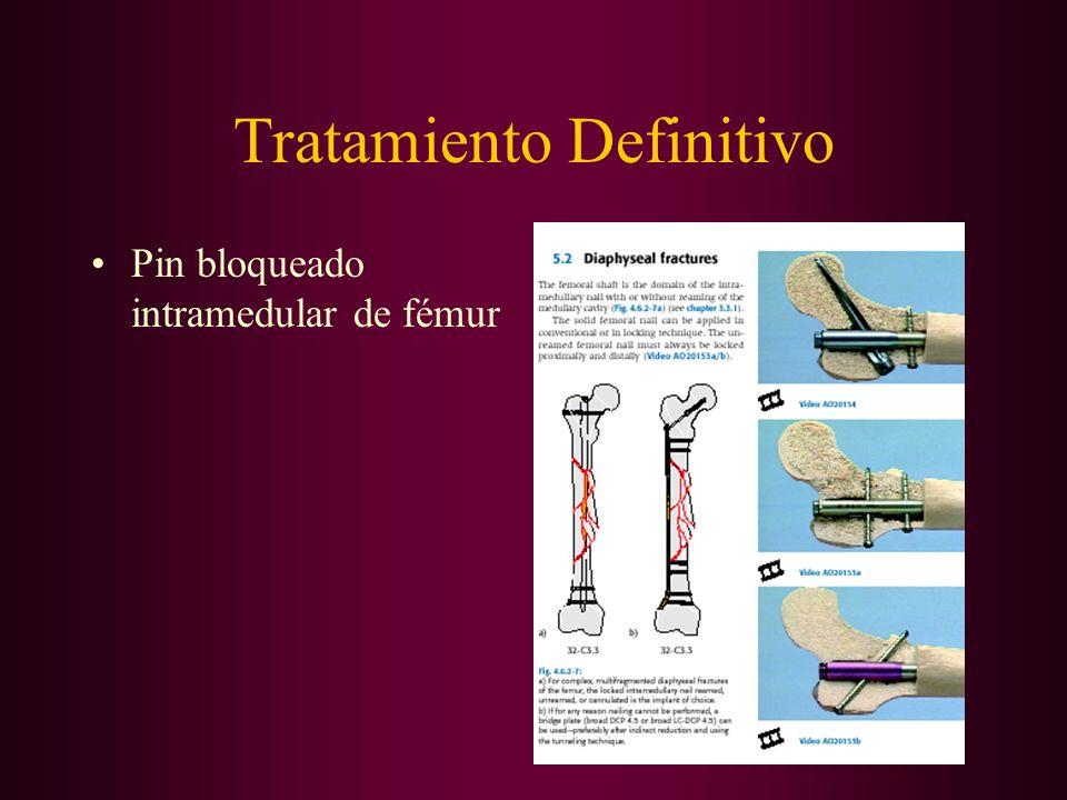 Tratamiento Definitivo Pin bloqueado intramedular de fémur