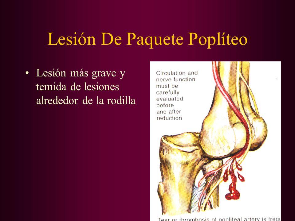 Lesión De Paquete Poplíteo Lesión más grave y temida de lesiones alrededor de la rodilla