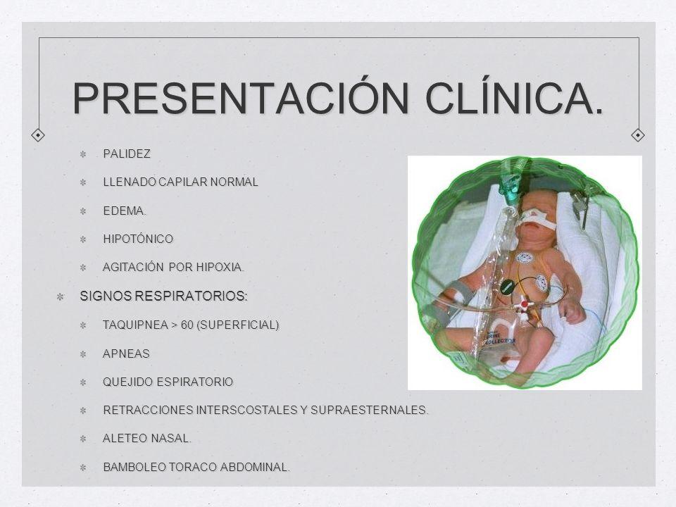 PRESENTACIÓN CLÍNICA. PALIDEZ LLENADO CAPILAR NORMAL EDEMA.HIPOTÓNICO AGITACIÓN POR HIPOXIA. SIGNOS RESPIRATORIOS: TAQUIPNEA > 60 (SUPERFICIAL) APNEAS