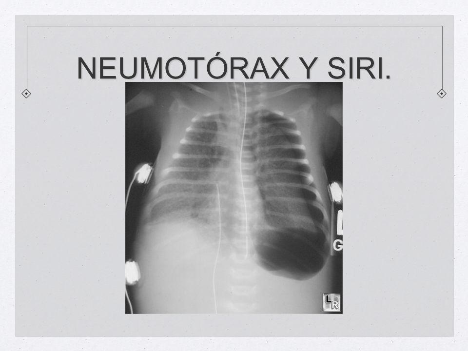 NEUMOTÓRAX Y SIRI.
