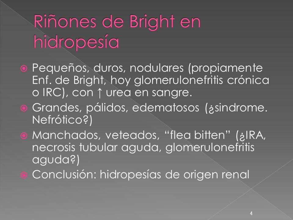 4 Pequeños, duros, nodulares (propiamente Enf. de Bright, hoy glomerulonefritis crónica o IRC), con urea en sangre. Grandes, pálidos, edematosos (¿sin