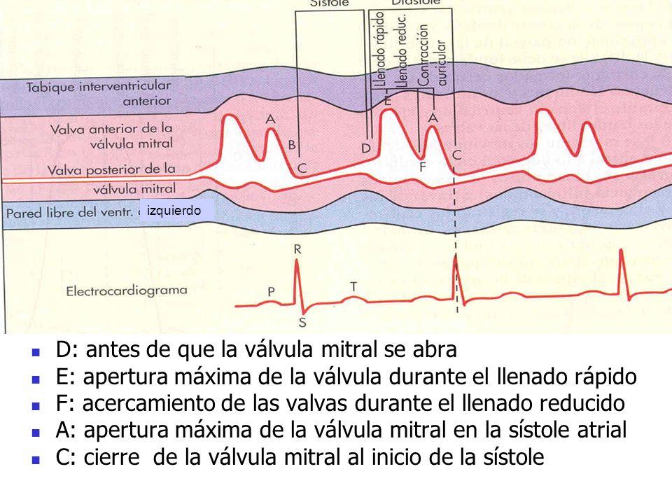 izquierdo D: antes de que la válvula mitral se abra E: apertura máxima de la válvula durante el llenado rápido F: acercamiento de las valvas durante e