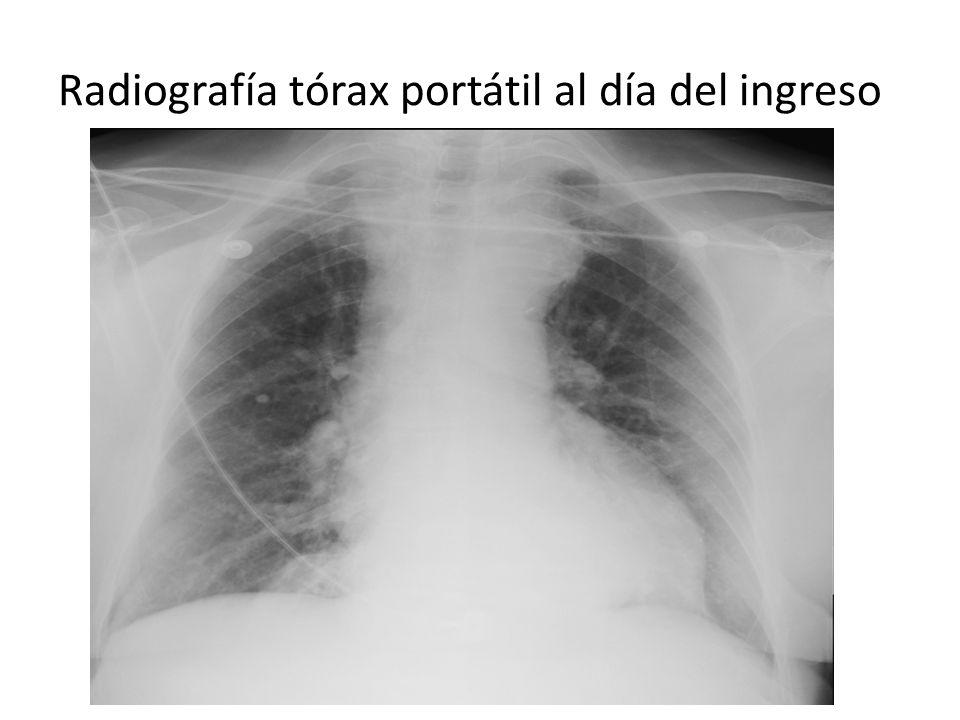 Radiografía tórax portátil al día del ingreso