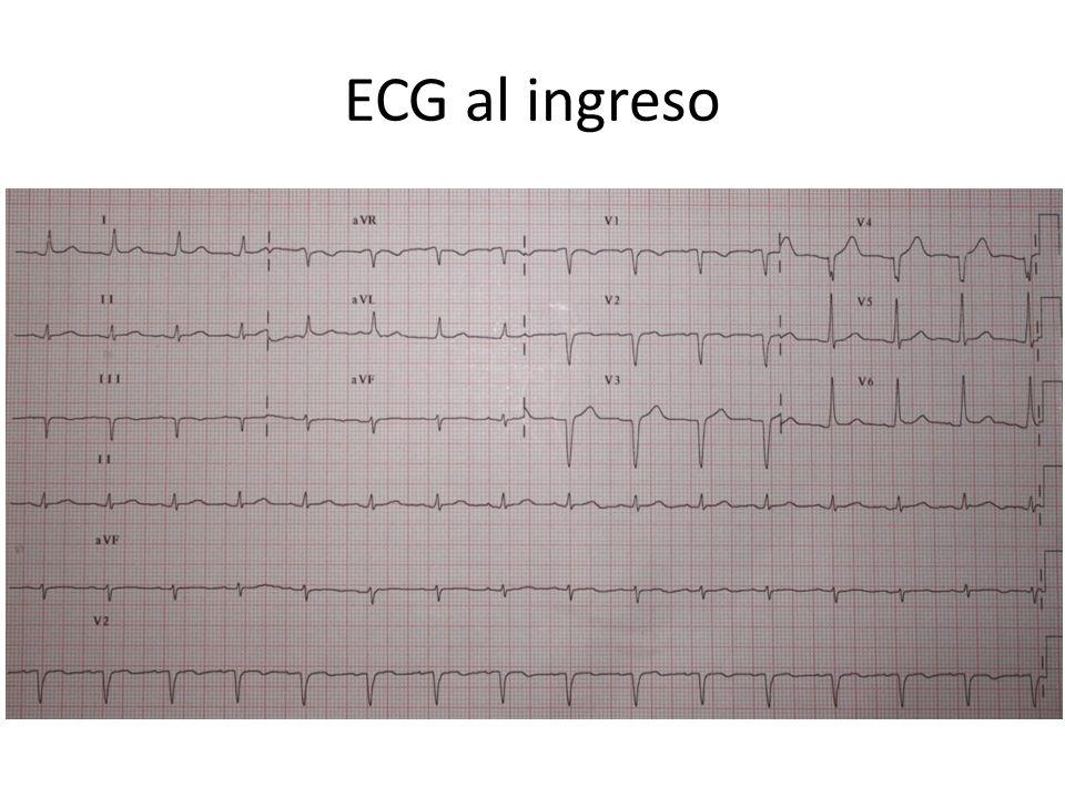 ECG al ingreso