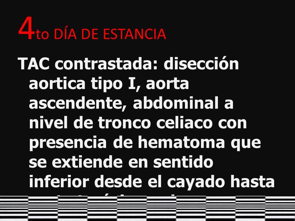 4 to DÍA DE ESTANCIA TAC contrastada: disección aortica tipo I, aorta ascendente, abdominal a nivel de tronco celiaco con presencia de hematoma que se