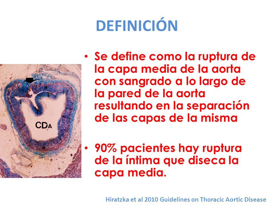 DEFINICIÓN Se define como la ruptura de la capa media de la aorta con sangrado a lo largo de la pared de la aorta resultando en la separación de las c