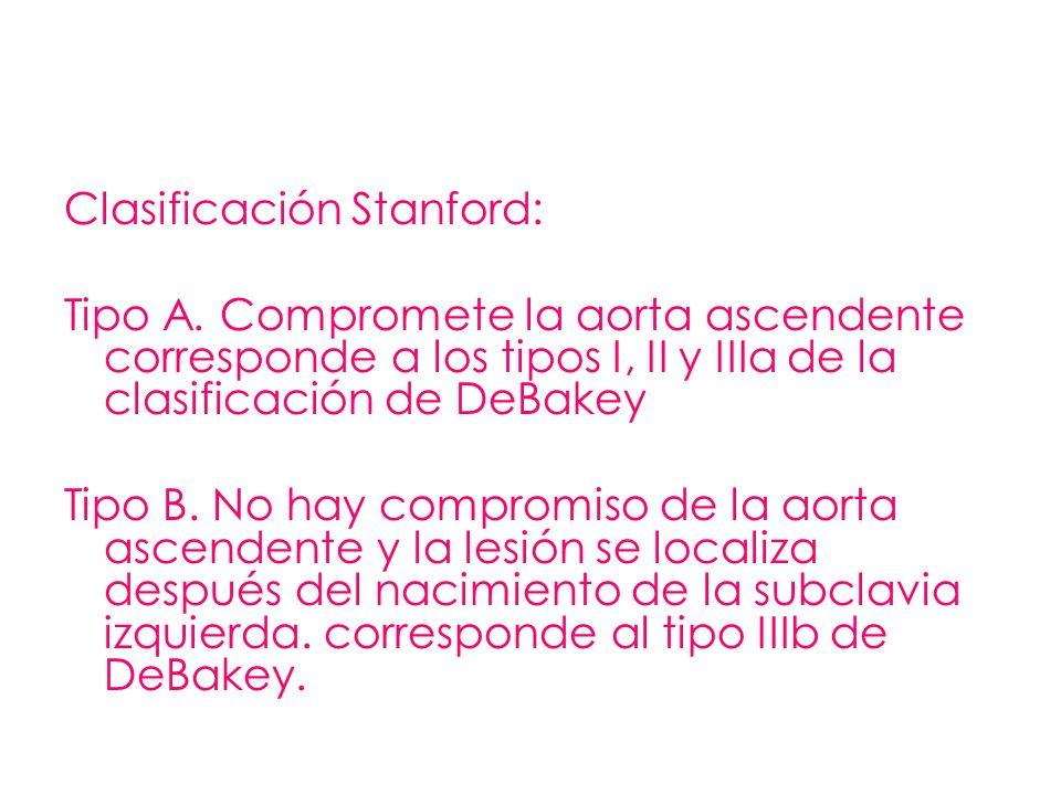 Clasificación Stanford: Tipo A. Compromete la aorta ascendente corresponde a los tipos I, II y IIIa de la clasificación de DeBakey Tipo B. No hay comp
