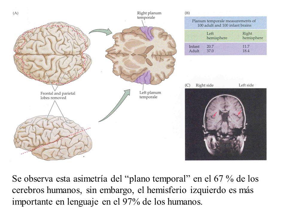Se observa esta asimetría del plano temporal en el 67 % de los cerebros humanos, sin embargo, el hemisferio izquierdo es más importante en lenguaje en