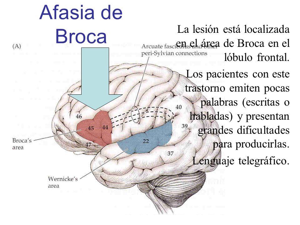 La lesión está localizada en el área de Broca en el lóbulo frontal. Los pacientes con este trastorno emiten pocas palabras (escritas o habladas) y pre