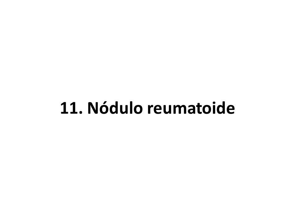 11. Nódulo reumatoide