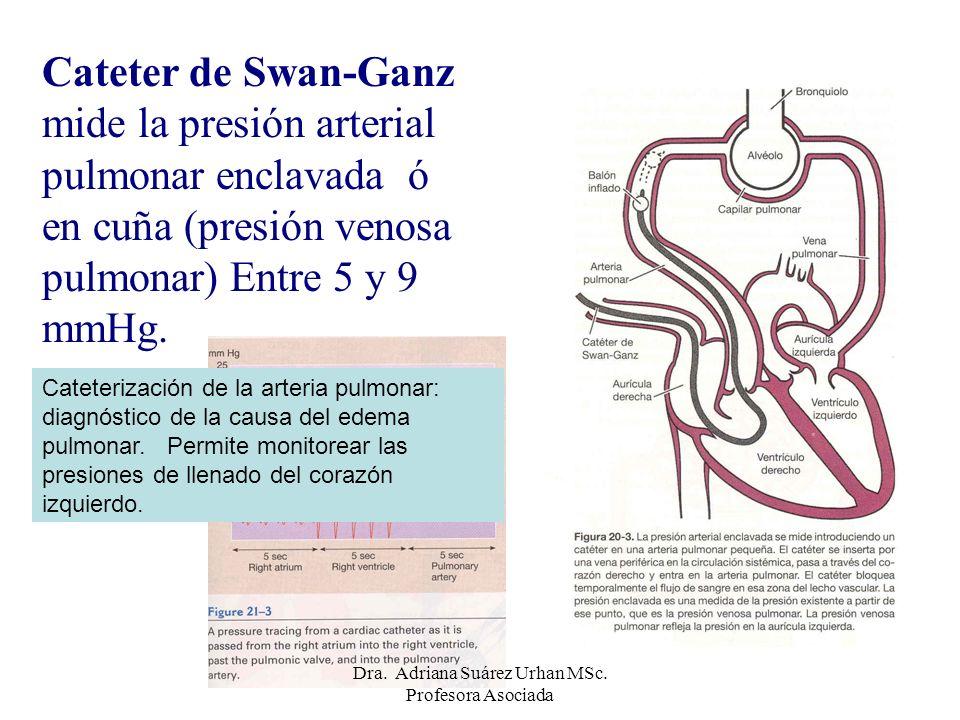 Cateter de Swan-Ganz mide la presión arterial pulmonar enclavada ó en cuña (presión venosa pulmonar) Entre 5 y 9 mmHg. Cateterización de la arteria pu