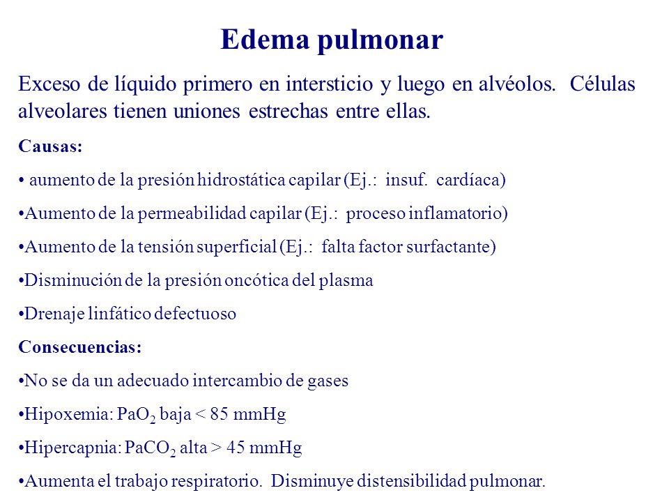 Edema pulmonar Exceso de líquido primero en intersticio y luego en alvéolos. Células alveolares tienen uniones estrechas entre ellas. Causas: aumento