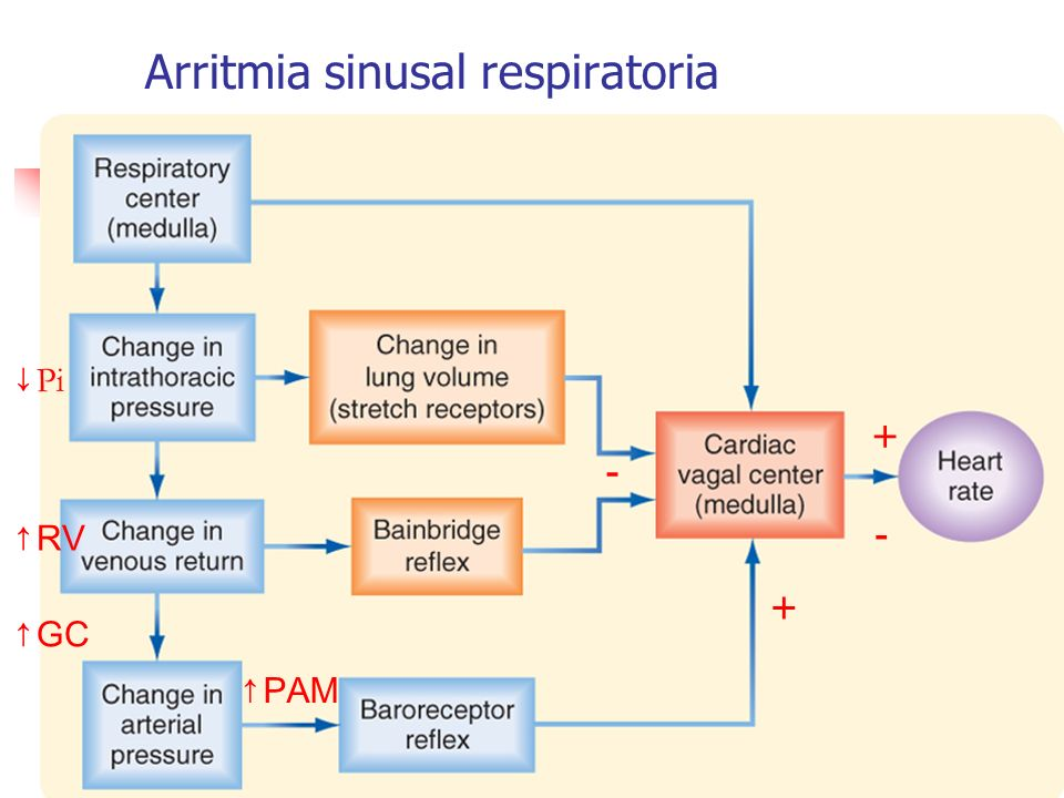 Arritmia sinusal respiratoria Pi - RV + GC PAM + -