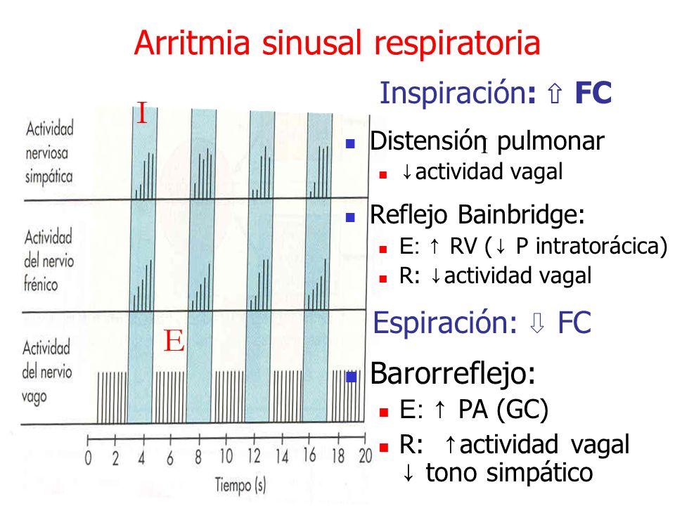 Arritmia sinusal respiratoria I Inspiración: FC Distensión pulmonar actividad vagal Reflejo Bainbridge: E: RV ( P intratorácica) R: actividad vagal Es