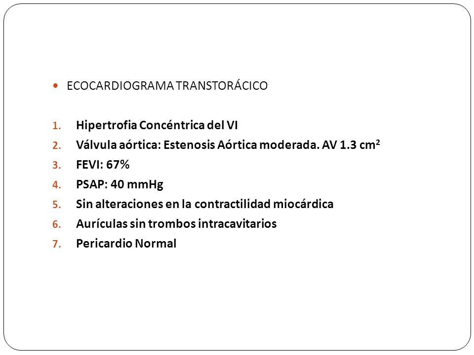 ECOCARDIOGRAMA TRANSTORÁCICO 1. Hipertrofia Concéntrica del VI 2. Válvula aórtica: Estenosis Aórtica moderada. AV 1.3 cm 2 3. FEVI: 67% 4. PSAP: 40 mm