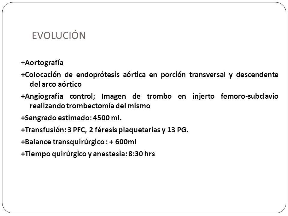 EVOLUCIÓN +Aortografía +Colocación de endoprótesis aórtica en porción transversal y descendente del arco aórtico +Angiografía control; Imagen de tromb